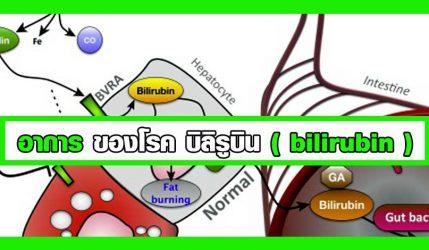 อาการ ของโรค บิลิรูบิน ( bilirubin )