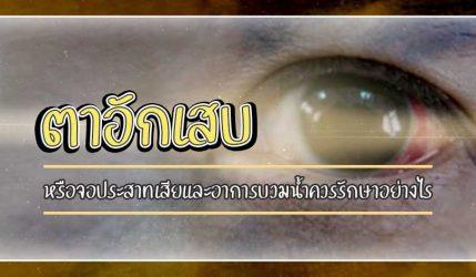 ตาอักเสบ หรือจอประสาทเสียและอาการบวมน้ำควรรักษาอย่างไร